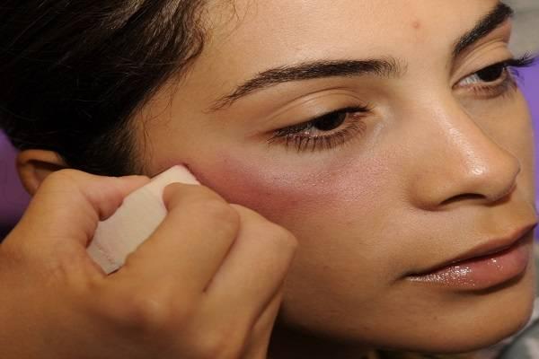 تزریق مزوژل زیر چشم