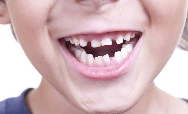 فضای خالی بین دندان