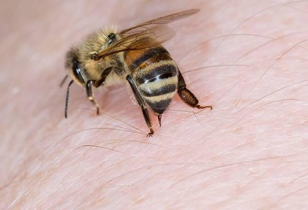 نیش زنبور