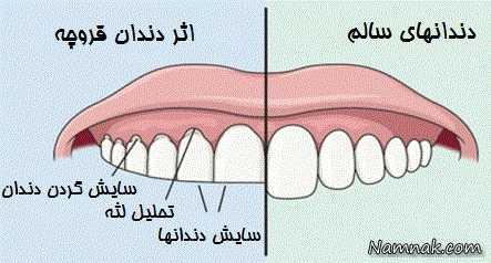 بروکسیم یا دندان قروچه ، از علت تا درمان