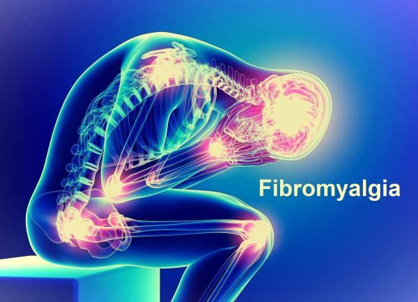 فیبرومیالژیا