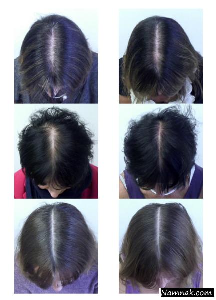 درمان ریزش موی زنانه