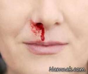 درمان ریزش خون بینی