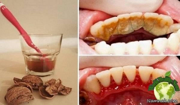 رفع پلاک دندان