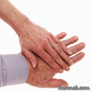 درمان لکه های دست ، Lighten Sun Spots on Your Hands