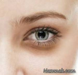 تیرگی دور چشم ، darkness around the eyes treatment