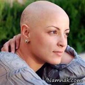 ریزش مو بعد از شیمی درمانی