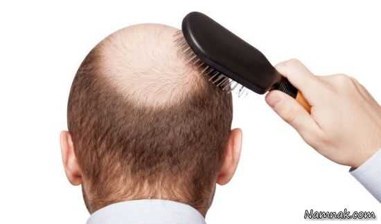 ریزش مو پیاز