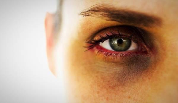 تیرگی دور چسم | علت تیرگی دور جشم | درمان سریع تیرگی دور چشم