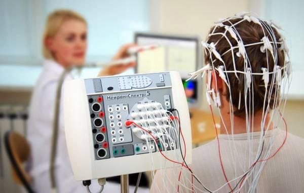 الکتروانسفالوگرام (EEG)