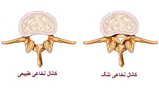 عوامل تنگی کانال نخاع