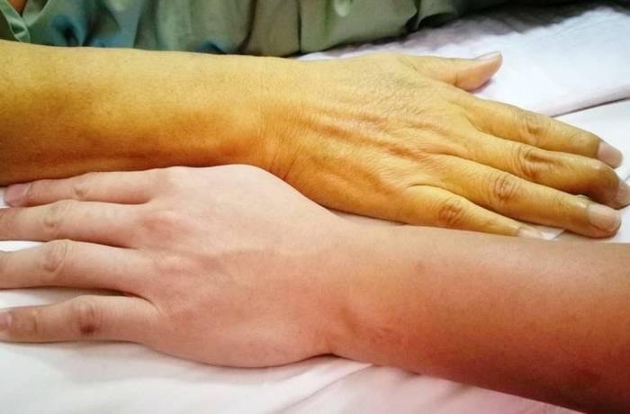 انواع بیماری یرقان