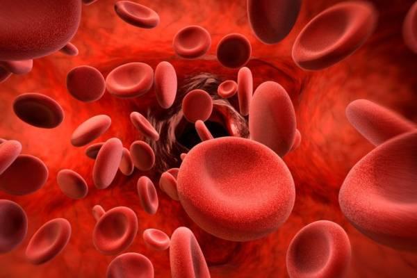 ترشی برای کم خونی