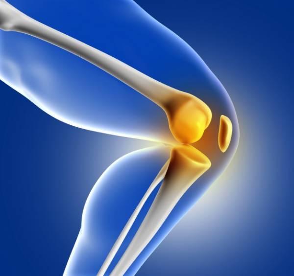 آرتریت التهاب مفاصل