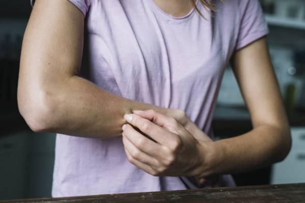 بیماری پوستی در بارداری