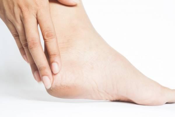 ترک پا (درمان خانگی و سنتی)