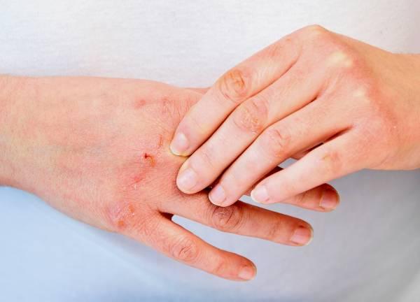درمان قرمزی اگزما