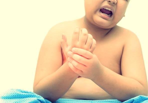 علت آرتریت در کودکان