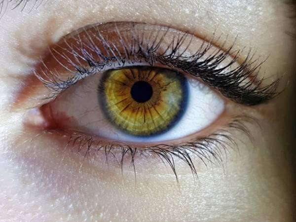 دلیل خشکی دور چشم
