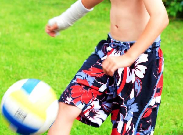 فوتبال با گچ گرفتگی