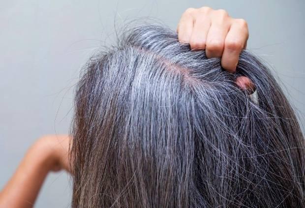 علت سفیدی ناگهانی مو